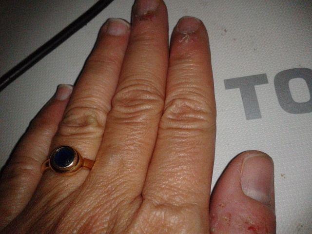 beurk mes doigts rongés, pas fière de moi (mais jamais l'annulaire et l'auriculaire, il faut savoir raison garder)