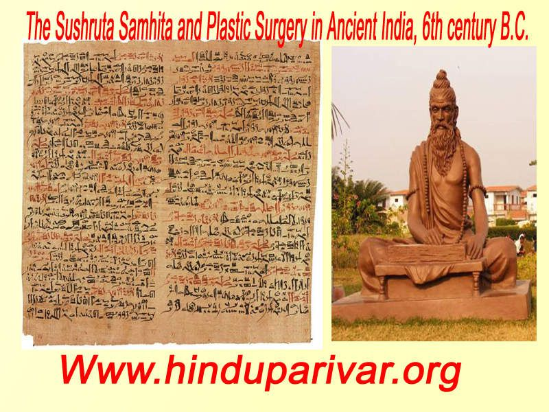 The Sushruta Samhita and Plastic Surgery in Ancient India, 6th century B.C.Plastic surgery seems to be an invention of the modern age. The desire to attain physical beauty is no doubt one of the factors that has contributed to the popularity of this procedure. Apart from cosmetic reasons, plastic surgery is also carried out for reconstructive purposes. Yet, plastic surgery has been around longer than most people realize. One of the earliest instances of plastic surgery can be found in the Sushruta Samhita, an important medical text from India.The Sushruta Samhita is commonly dated to the 6th century B.C., and is attributed to the physician Sushruta (meaning 'very famous' in Sanskrit). The Sushruta Samhita's most well-known contribution to plastic surgery is the reconstruction of the nose, known also as rhinoplasty. The process is described as such:The portion of the nose to be covered should be first measured with a leaf. Then a piece of skin of the required size should be dissected from the living skin of the cheek, and turned back to cover the nose, keeping a small pedicle attached to the cheek. The part of the nose to which the skin is to be attached should be made raw by cutting the nasal stump with a knife. The physician then should place the skin on the nose and stitch the two parts swiftly, keeping the skin properly elevated by inserting two tubes of eranda (the castor-oil plant) in the position of the nostrils, so that the new nose gets proper shape. The skin thus properly adjusted, it should then be sprinkled with a powder of licorice, red sandal-wood and barberry plant. Finally, it should be covered with cotton, and clean sesame oil should be constantly applied. When the skin has united and granulated, if the nose is too short or too long, the middle of the flap should be divided and an endeavor made to enlarge or shorten it.A statue dedicated to Sushruta at the Patanjali Yogpeeth institute in HaridwarA statue dedicated to Sushruta at the Patanjali Yogpeet