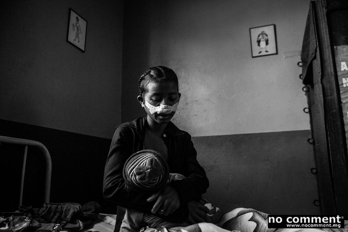 Razafimamy Tsialonina, 19 ans, agricultrice et son fils de 5 mois. Elle vient de se faire opérer d'une hypertrophie de la cornée nasale.
