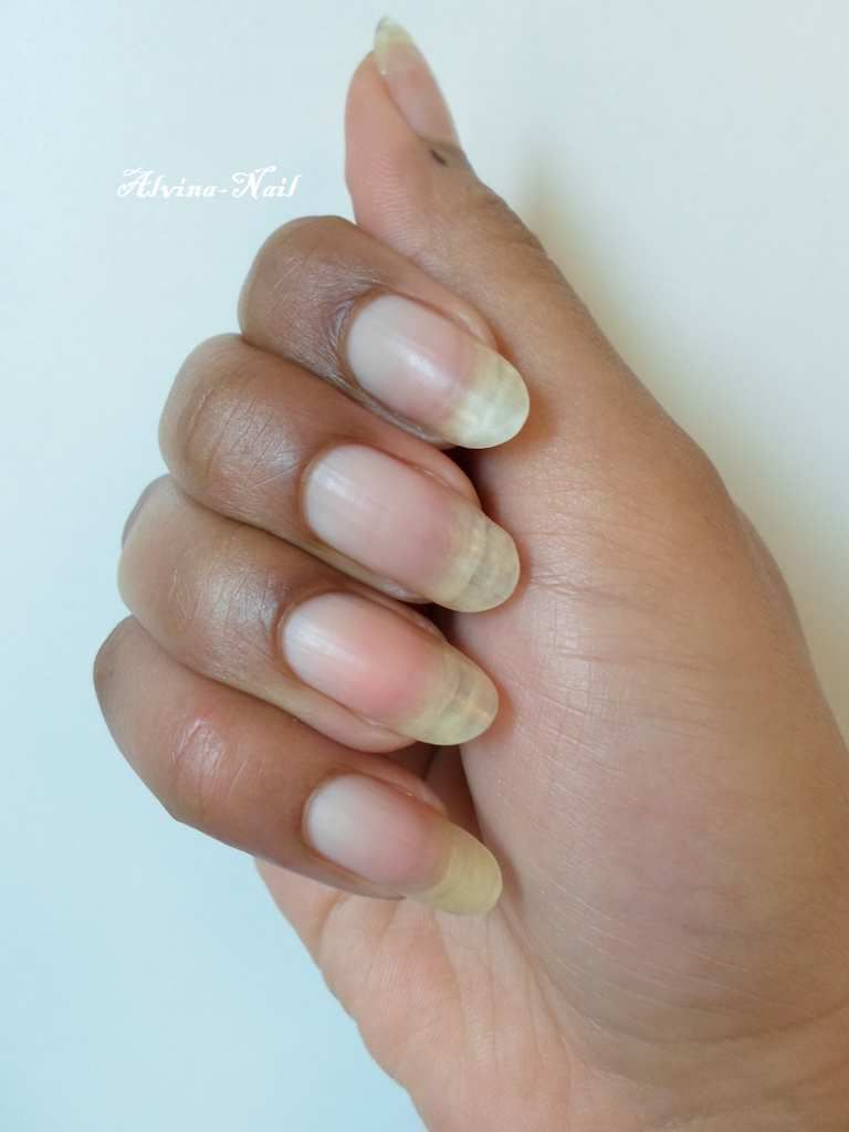 Nouvelle forme d'ongle