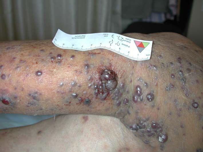 Métastases cutanées du cancer de la peau - Dermatologie