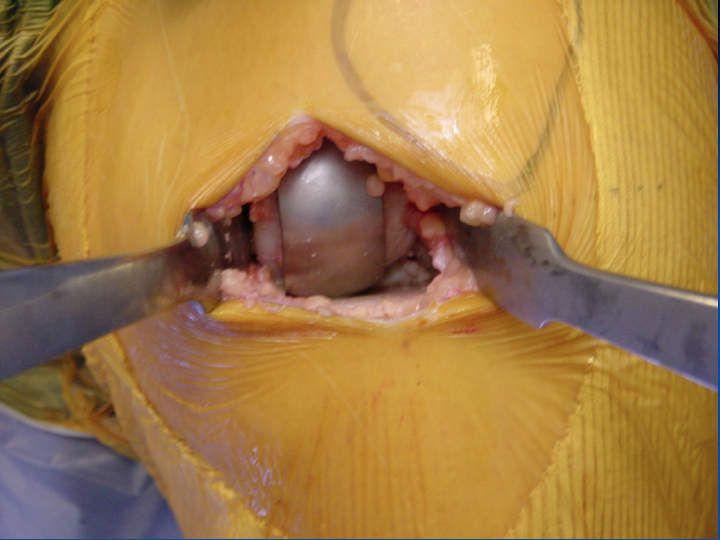- LES MINI INCISIONS POUR prothèses de genou