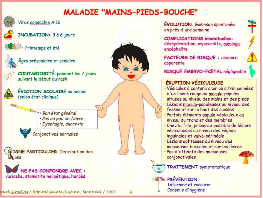 Syndrome pieds-mains-bouche