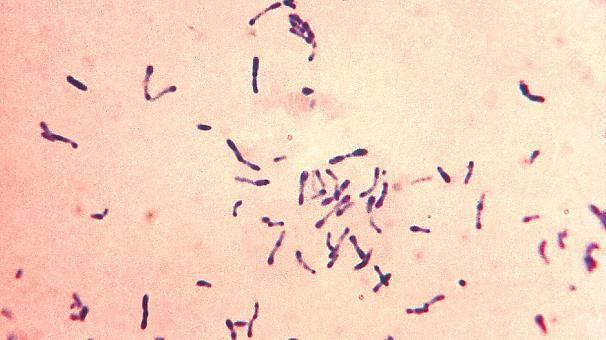 Le bacille de la diphtérie