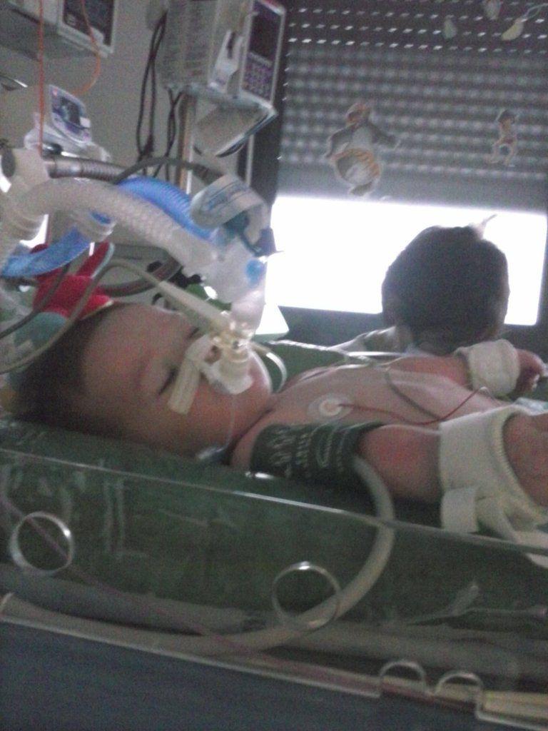Livio, handicapé à 80% suite aux vaccins Prevenar & Infanrix Quinta