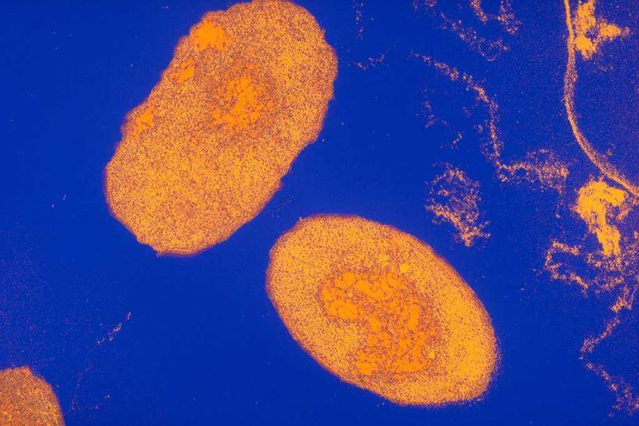 Image au microscope électronique de la bactérie Bordetella Pertussis responsable de la coqueluche (Photo : Alain Grillet/Sanofi Pasteur)