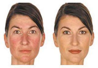 prima e dopo il trattamento con elettrocoagulazione