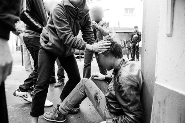 Traumastisme cranien et 12 points de suture pour ce blessé - Photo : Indymédia-Nantes