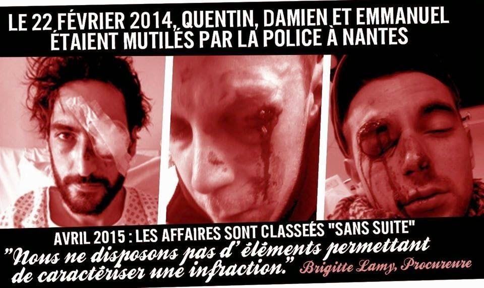 """""""Nantes Révoltée"""""""