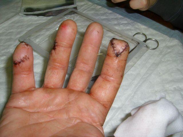 26 janvier 2012. Texte de Chris l'auteur : voici le résultat Trex 600 et contact avec ma main droite gaz à fond j'ai de la chance il me reste des doigts mais handicapé à vie. Merci pour toute ces images !