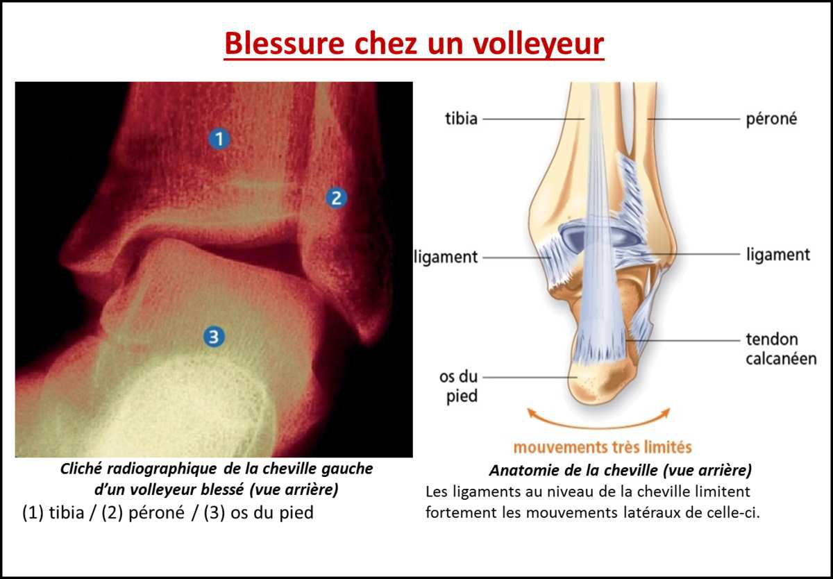 2nde_Exercice : Blessures musculo-articulaires