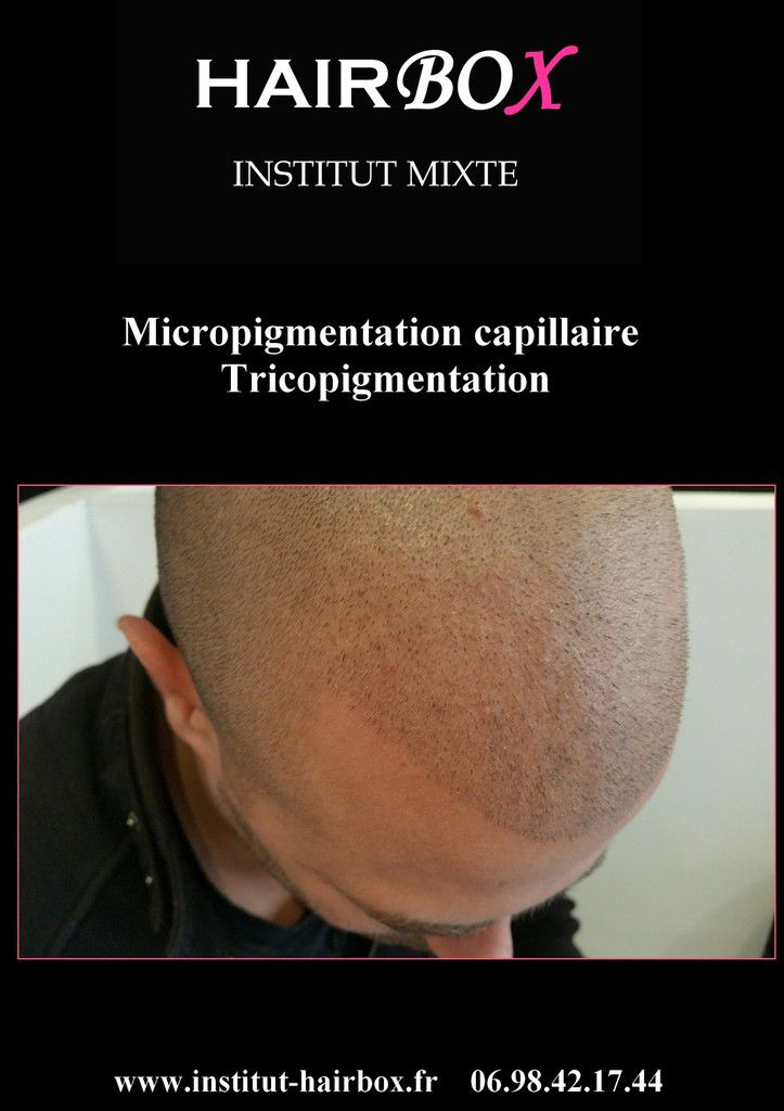 micropigmentation capillaire france