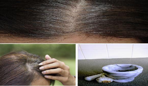 Astuce pour eliminer les cheveux gris