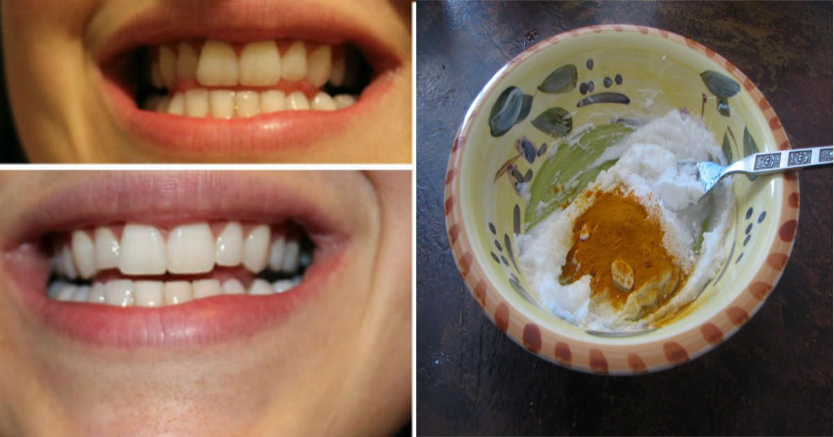 أى أنثى تسعى دائما للحصول على أسنان بيضاء و جميله و لكنها لا تعلم ان الحل موجود فى مطبخها...