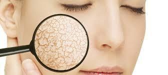 Masque au miel visage pour peau sèche