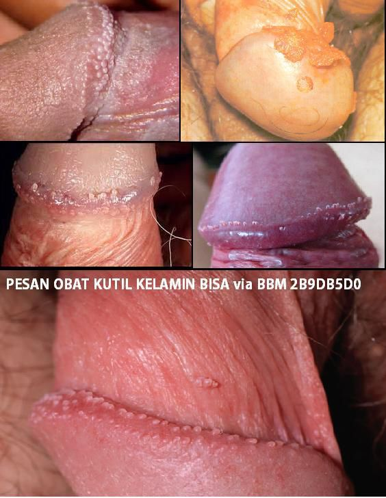 Obat Kutil Kelamin Hpv Licensed For Non Commercial Use Only
