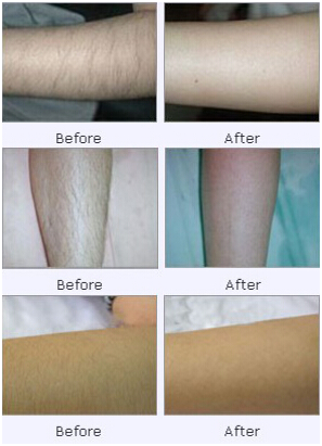 Does Laser Hair Removal Lead To Scars Bodytruth Pro