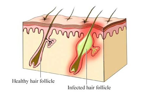 how to make skin grow faster over scab pimple