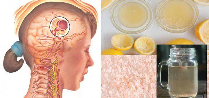 Cette boisson naturelle peut faire disparaître votre migraine en 10 minutes seulement