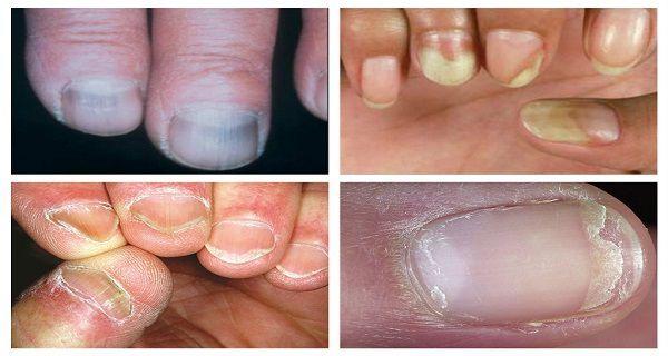 Ce que révèle la couleur de vos ongles à propos de votre santé
