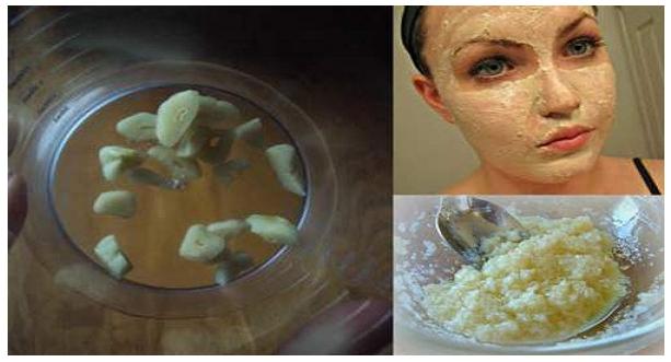 Masque facial naturel à base d'ail pour rajeunir votre peau! Ça vaudra la peine d'en essayer