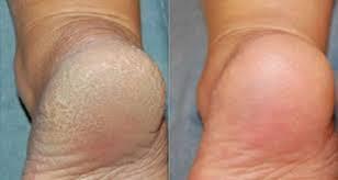 Comment avoir les pieds doux et soyeux en utilisant le bicarbonate de soude ?