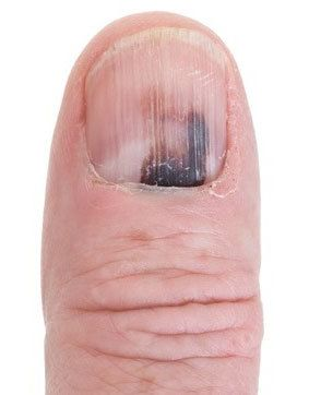Tell Me About Nail Fungus