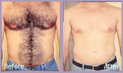 Unwanted Chest Hair Removal Cream In Pakistan Chest Hair Removal