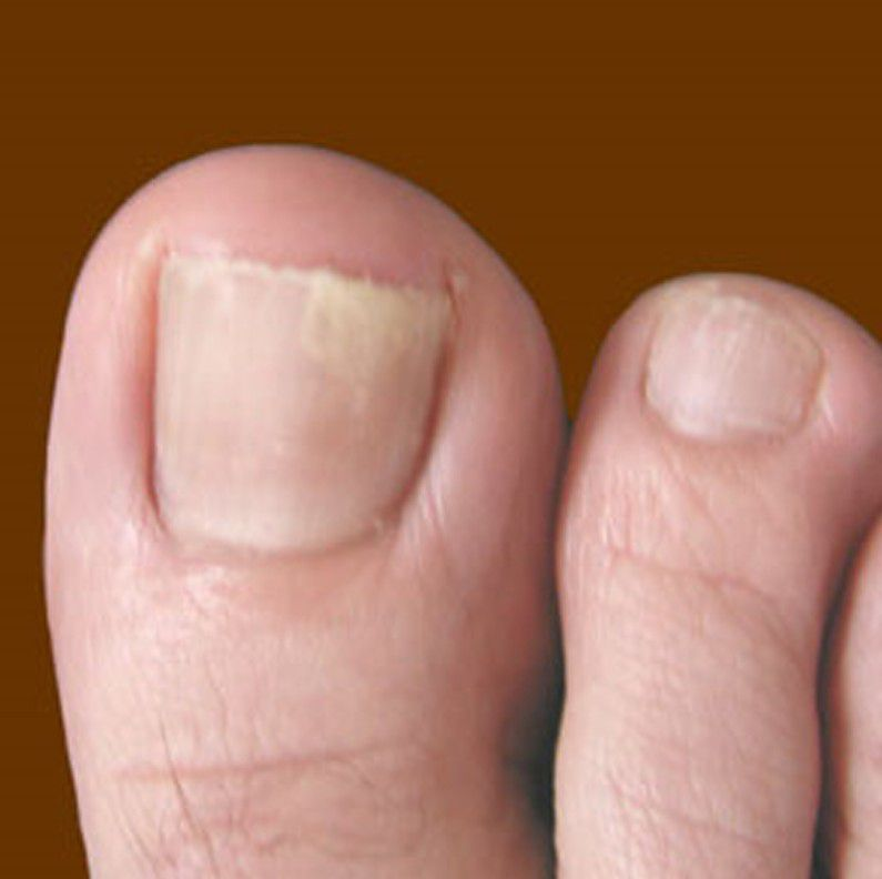4 Types of Toenail Fungus - Moore\'s Skin Care Tips