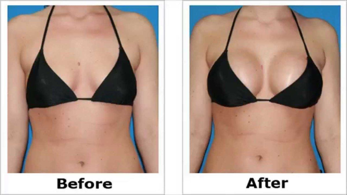 Breast Actives Before And After Pictures Dr Gregory Stover Blog