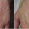 Most effective Dermasis Psoriasis Ointment