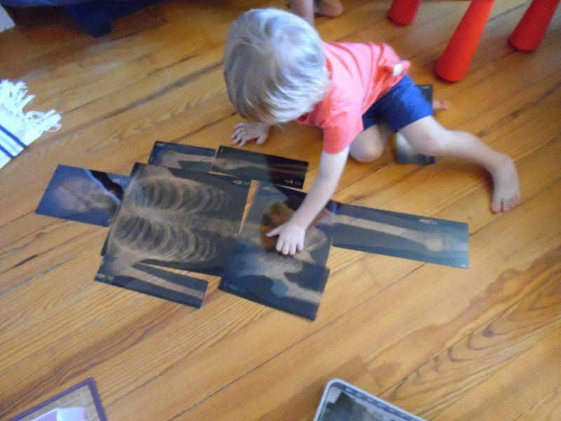 Timéo a voulu refaire le puzzle des radios du squelette.