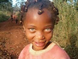 la diversité de la couleur des yeux du noir.