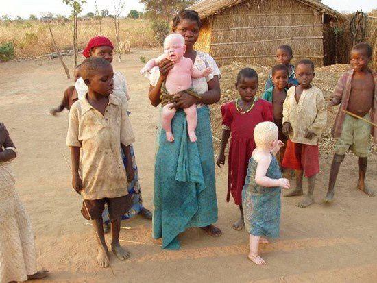 Imágenes albinos y albinas de Malawi.- El Muni.