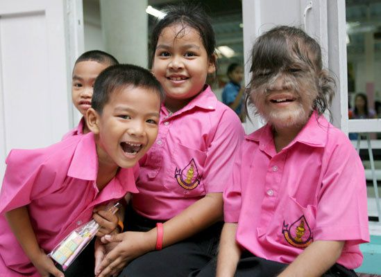 Imágenes de la niña peluda, Supatra Sasuphan, con su familia y sus compañer@s de cole.- El Muni.