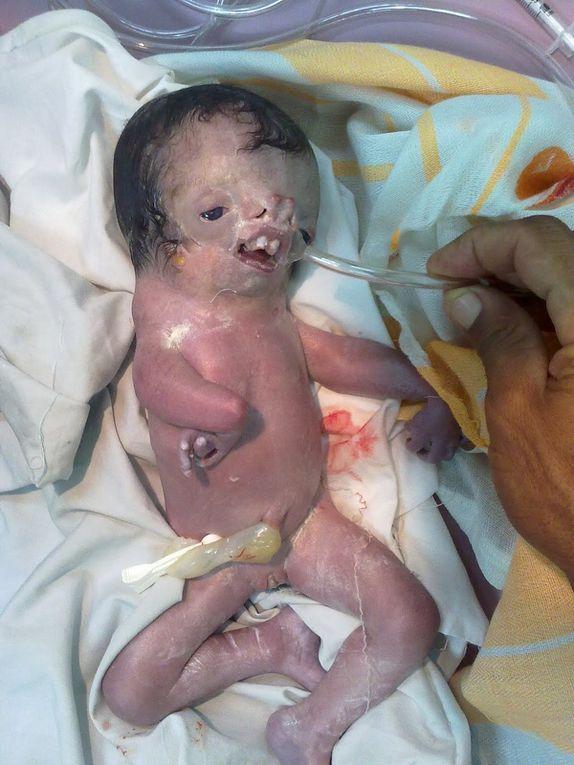 Naissance de milliers d'enfants malformés en Irak: l'OMS censure son propre rapport!!
