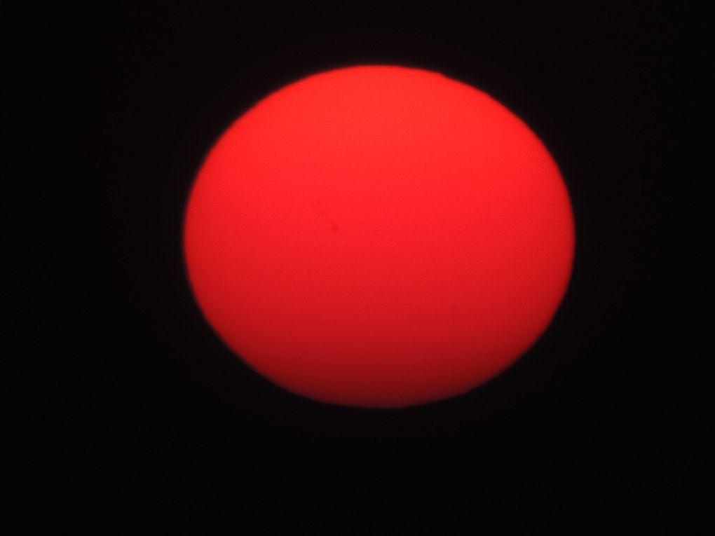 Un coup de soleil