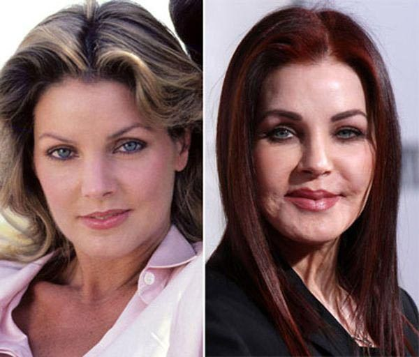priscilla presley bad plastic surgery   celebrity plastic