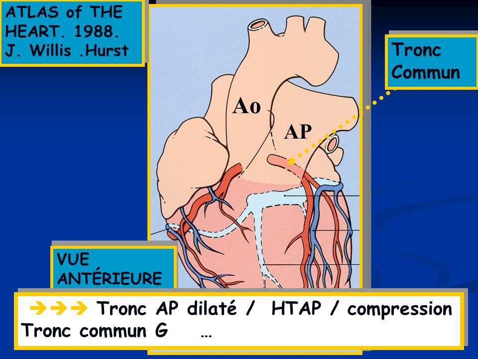 ABCD aire en Médecine Générale
