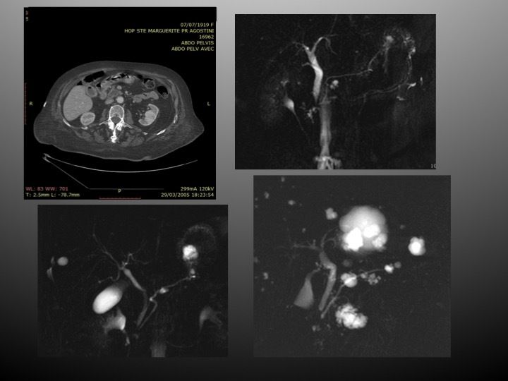 LES EXPLORATIONS IMAGERIE en GASTRO-ENTEROLOGIE : CAS 2