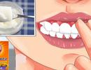 Comment guérir la gingivite avec de simples ingrédients : curcuma, huile de coco, bicarbonate de soude ou citrons (plus besoin de dentiste)