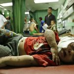 A Palestinian child, wounded in an Israeli strike on a compound housing a UN school in Jabaliya