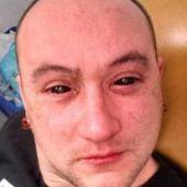 Un biohacker s'injecte un liquide dans les yeux pour voir dans le noir - OOKAWA Corp.
