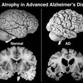 C'est confirmé, l'aluminium favorise la maladie d'Alzheimer - MOINS de BIENS PLUS de LIENS