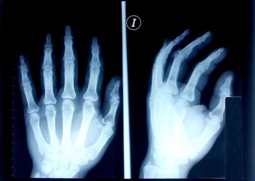 X-ray hands