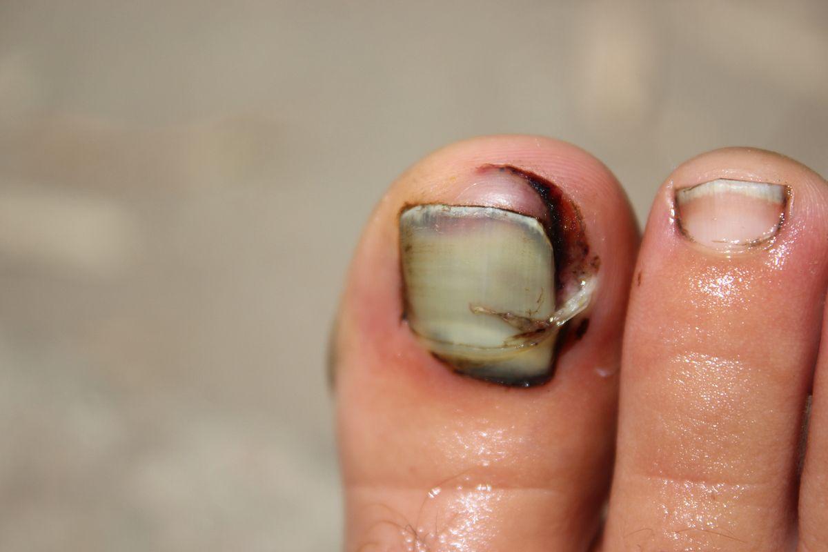 Et pour certains (certaine...), il ne s'agit pas des mains... mais des pieds! Et oui, c'est ça d'aller bosser au champ en sandales! Le tracteur, ça ne pardonne pas!