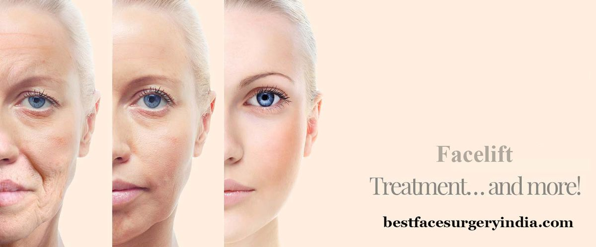 best facelift surgery cost in delhi