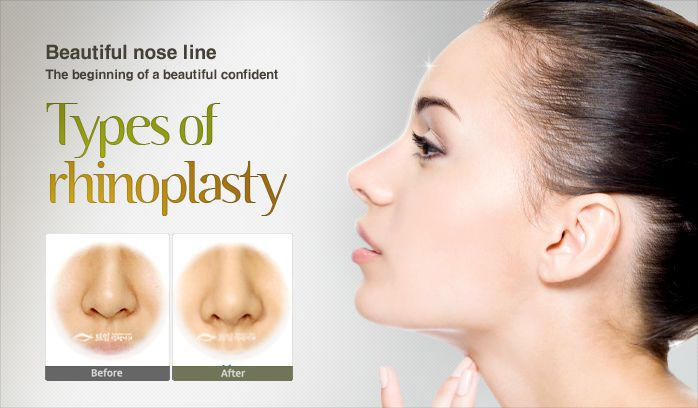 Best Rhinoplasty Surgery In Delhi Who Is The Right Candidate And Life After Surgery Best Face Surgeon Otoplasty Lip Augmentation Blepharoplasty Rhinoplasty Cheek Augmentation Surgery In India