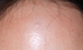 Subclinical on rid of forehead acne get Subclinical Acne:
