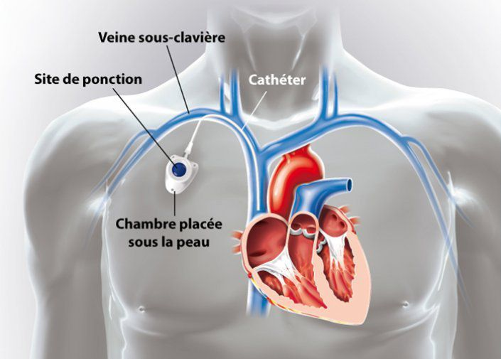 Le catheter vocal 06 23 78 01 34 for Chambre implantable